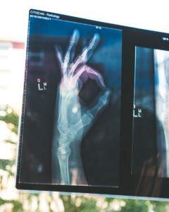 x-ray-ok